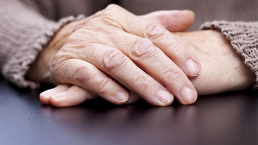 Entrada AA. Artrosis manos