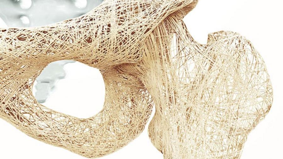 Entrada Semana 43. La Osteoporosis y la Vitamina D 1
